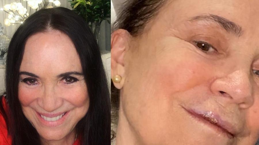 reginaduarte - Regina Duarte cai em calçada e quebra 3 dentes