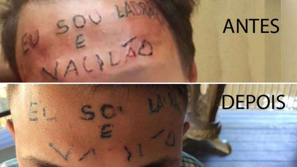 """Reprod Poa 24 horas 458 1536x865 1 1024x577 - Lembre-se do jovem com """"ladrão e vacilão"""" gravado na testa? Veja como ele esta agora"""