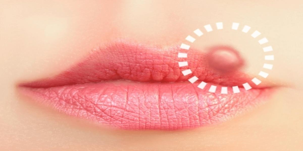"""1b 2 - Até 7 tipos de doenças se espalham pelo """"beijo"""", você precisa conhecer"""
