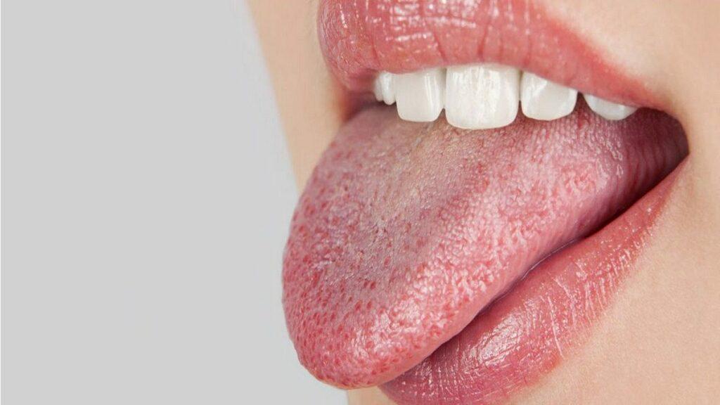 picture vk4gghq5q img 1024x576 - Você fica com a boca seca e amarga ao acordar? Seu corpo está avisando você!