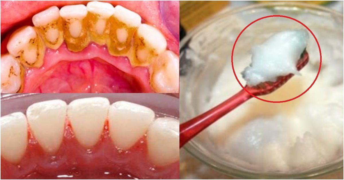 antes e depoiss - Saiba como eliminar o tártaro e clarear os dentes de maneira natural sem necessidade de um dentista