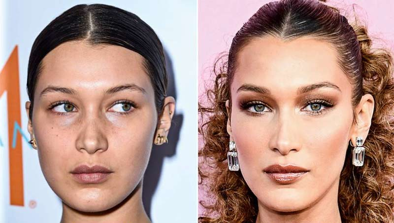 bella hadid - Harmonização Facial: veja o antes e depois das 14 celebridades que fizeram