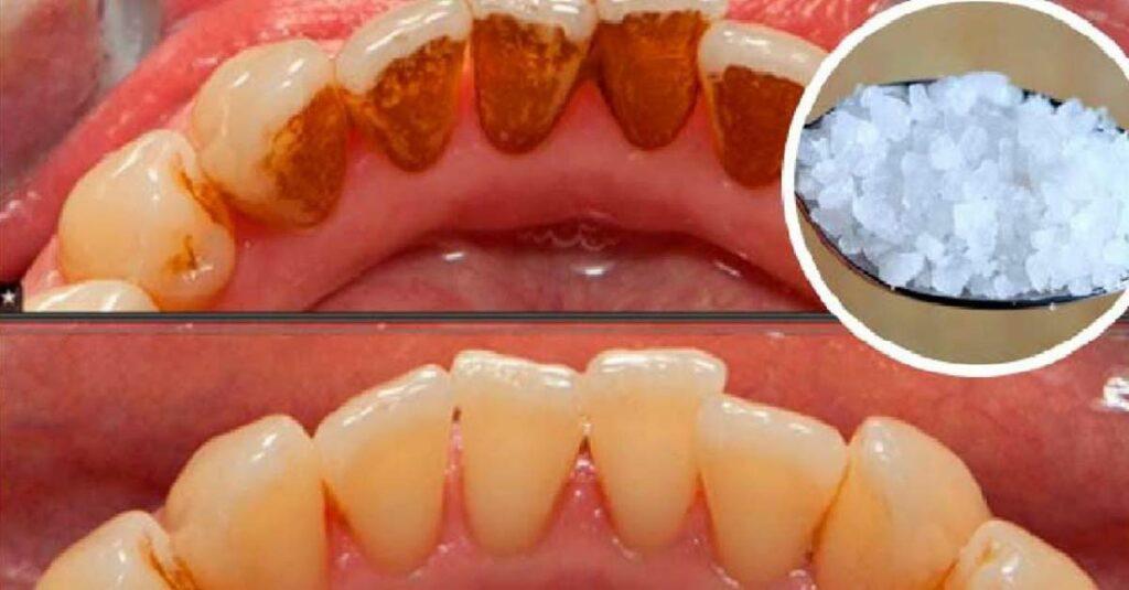 eliminar o tartaro 1024x535 - Saiba como eliminar o tártaro e clarear os dentes de maneira natural sem necessidade de um dentista