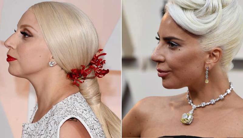 gaga harmonizacao facial - Harmonização Facial: veja o antes e depois das 14 celebridades que fizeram