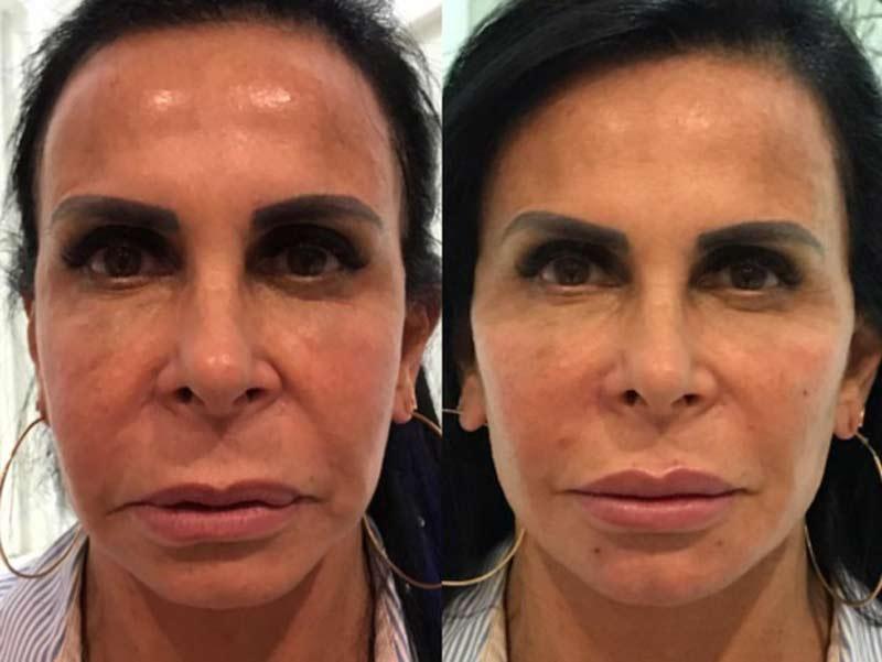 gretchen harmonizacao - Harmonização Facial: veja o antes e depois das 14 celebridades que fizeram