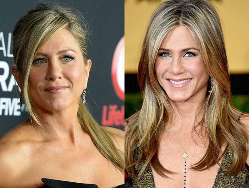 harmonizacao facial celebridades - Harmonização Facial: veja o antes e depois das 14 celebridades que fizeram
