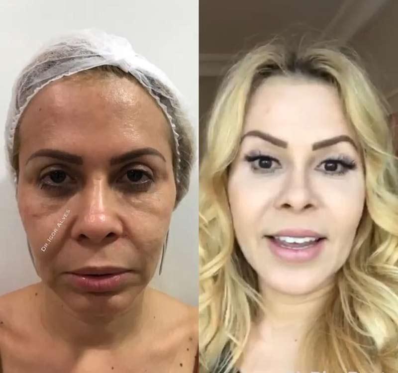 joelma harmonizacao - Harmonização Facial: veja o antes e depois das 14 celebridades que fizeram