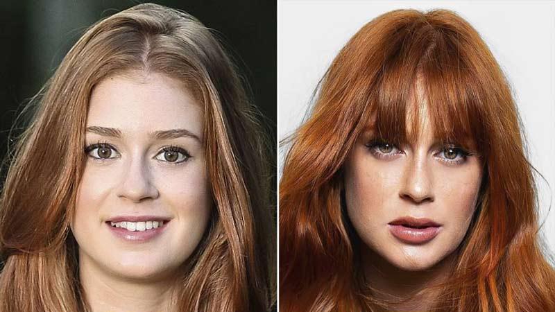marina ruy barbosa - Harmonização Facial: veja o antes e depois das 14 celebridades que fizeram