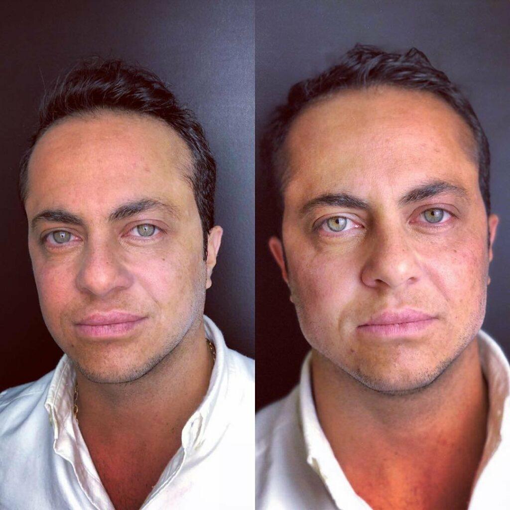 tammy 1024x1024 - Harmonização Facial: veja o antes e depois das 14 celebridades que fizeram