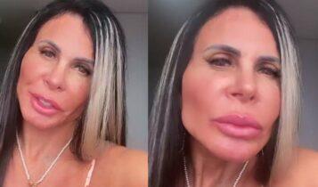 "Gretchen harmonizacao facial 357x210 - Gretchen realiza novo procedimento estético e mostra resultado: ""Tudo Novo e Bonito"""