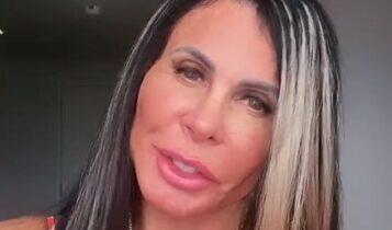 """mariagretchen 357x210 - Gretchen realiza novo procedimento estético e mostra resultado: """"Tudo Novo e Bonito"""""""