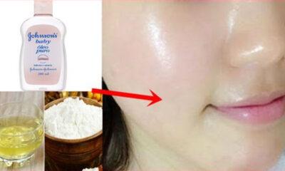 Retire manchas escuras 400x240 - Como tirar manchas escuras da pele em 3 dias apenas com óleo Johnsons; Veja a Receita