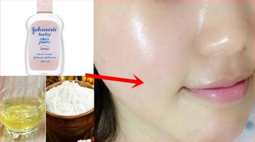 Retire manchas escuras - Como tirar manchas escuras da pele em 3 dias apenas com óleo Johnsons; Veja a Receita