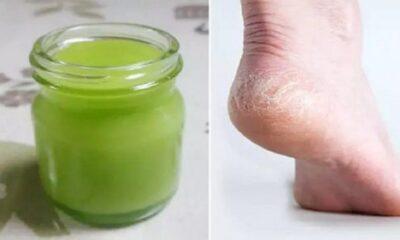 1 b 39 400x240 - Receita de creme natural para tratar pés secos e calcanhar rachado