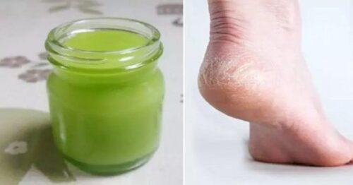 1 b 39 e1614456469386 - Receita de creme natural para tratar pés secos e calcanhar rachado