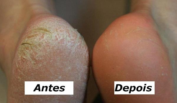 rachadura ultimasnews - Receita de creme natural para tratar pés secos e calcanhar rachado