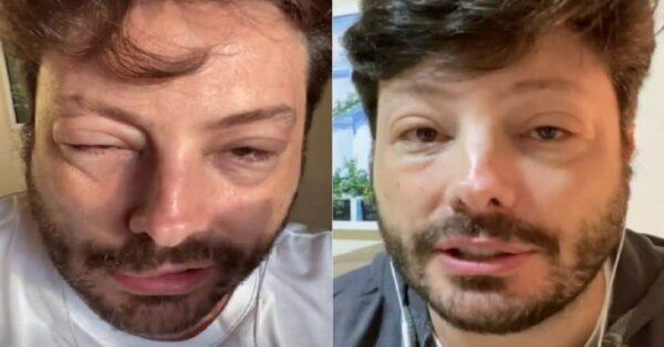 danilo 728x381 1 e1617606200583 - Danilo Gentili aparece com rosto todo desfigurado após crise alérgica: 'Poderia ir pro saco' ; diz o humorista